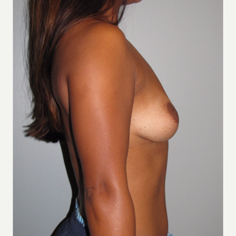 25-34 year old woman treated with Breast Implant Removal after 3508147