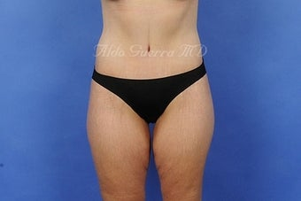 35 Year Old Female Extended Tummy Tuck After Major Weight Loss after 975129