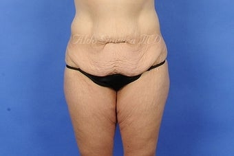 35 Year Old Female Extended Tummy Tuck After Major Weight Loss before 975129