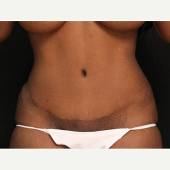 African-American Female Minimal Scar Abdominoplasty after 1665226