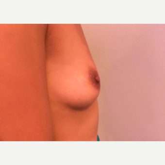 25-34 year old man treated with Breast Augmentation before 3783554