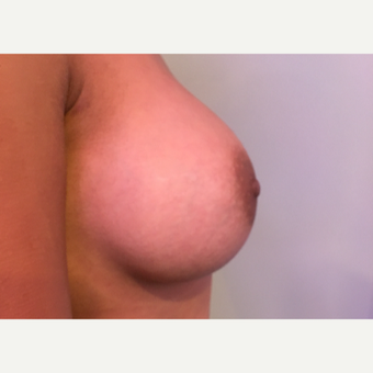 25-34 year old man treated with Breast Augmentation after 3783554