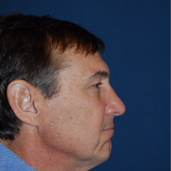 55-64 year old man treated with Rhinoplasty after 2976855