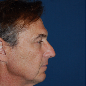 55-64 year old man treated with Rhinoplasty before 2976855