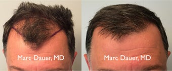 45-54 year old man treated with FUE Hair Transplant before 3377906