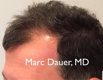 45-54 year old man treated with FUE Hair Transplant after 3377906