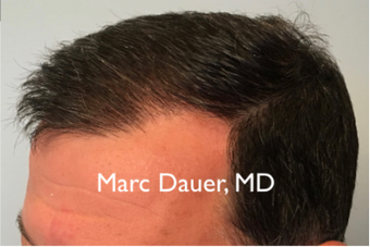 45-54 year old man treated with FUE Hair Transplant 3377906