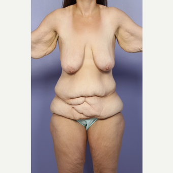 25-34 year old woman treated with Body Lift before 2852218