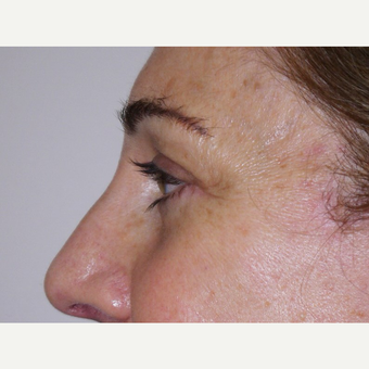 Eyelid Surgery after 3744012