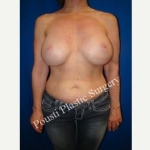55-64 year old woman treated with Breast Implants before 2029251