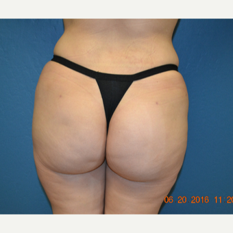 35-44 year old woman treated with Brazilian Butt Lift after 3170020