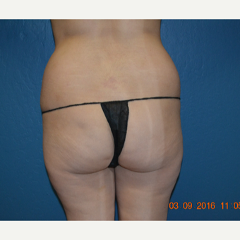 35-44 year old woman treated with Brazilian Butt Lift before 3170020