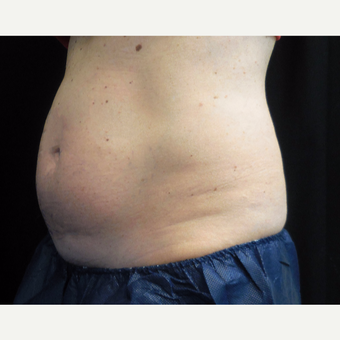 50 year old woman treated with CoolSculpting before 3690625