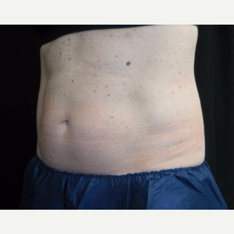 50 year old woman treated with CoolSculpting after 3690625