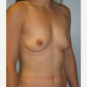 25-34 year old woman treated with Breast Implants before 3570456