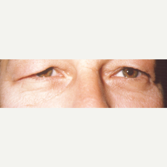 45-54 year old woman treated with Eye Bags Treatment before 3544924