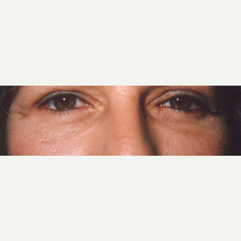 45-54 year old woman treated with Eye Bags Treatment after 3544924