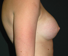 Breast Implants after 3545095