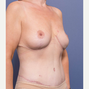 35-44 year old woman treated with Breast Lift after 3766895
