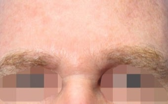 45-54 year old man treated with Wrinkle Treatment after 2306601