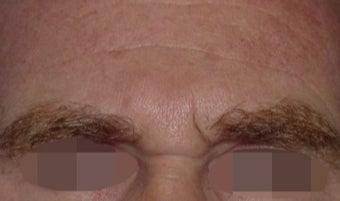 45-54 year old man treated with Wrinkle Treatment before 2306601