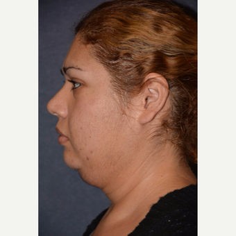 25-34 year old woman treated with Neck Lift before 3490141