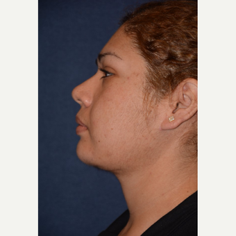 25-34 year old woman treated with Neck Lift after 3490141
