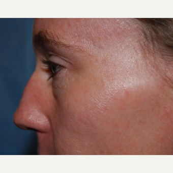35-44 year old woman treated with Eyelid Surgery before 3304773