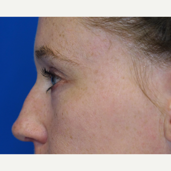 35-44 year old woman treated with Eyelid Surgery after 3304773
