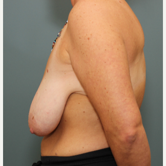 35-44 year old woman requesting Breast Lift before 3031463
