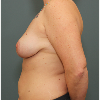 35-44 year old woman requesting Breast Lift after 3031463