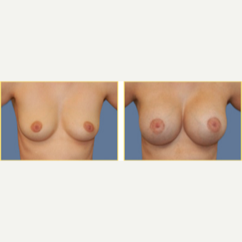 35-44 year old woman treated with Breast Augmentation before 3749795
