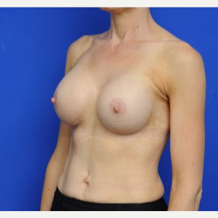 36 year old woman treated with Breast Augmentation after 3200418