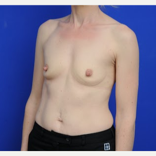 36 year old woman treated with Breast Augmentation before 3200418