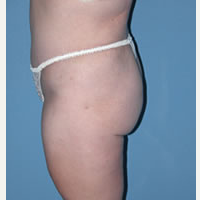 35-44 year old woman treated with Tummy Tuck after 3589690
