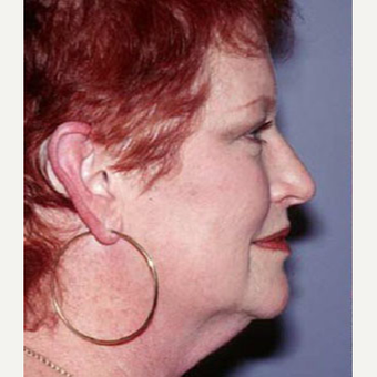 55-64 year old woman treated with Facelift before 3710268