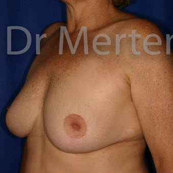 Breast Reduction after 3681321
