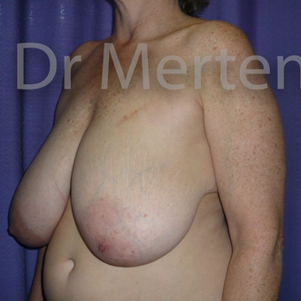 Breast Reduction before 3681321