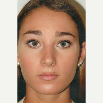 17 or under year old woman treated with Rhinoplasty after 3465414