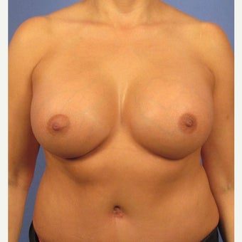 Breast augmentation - 600cc High Profile. Also had a tummy tuck. after 1968450