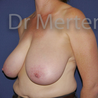Breast Reduction before 3648523