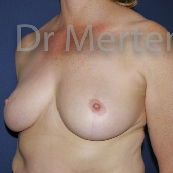 Breast Reduction after 3648523