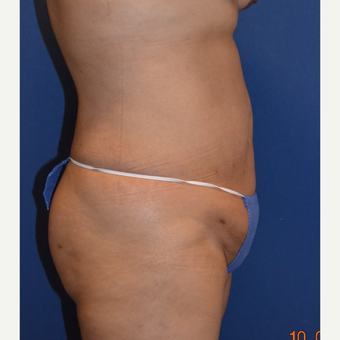 35-44 year old woman treated with Liposuction after 3663675