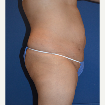 35-44 year old woman treated with Liposuction before 3663675
