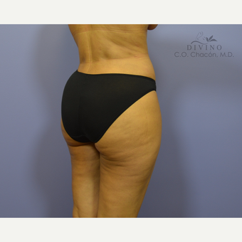 35-44 year old woman treated with Brazilian Butt Lift after 3418906