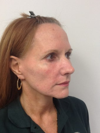 52 year old female with significant volume loss of the face 696526