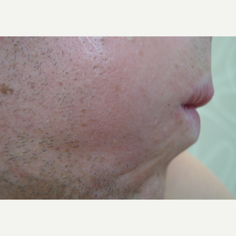 Acne and cysts can be effectively treated.