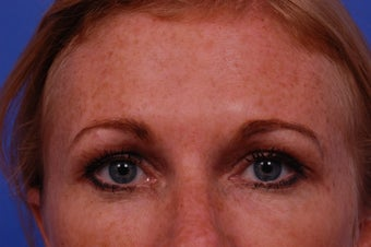 35-44 year old woman treated with Botox  -  areas treated: glabella, crows feet, forehead, jelly roll, and lips 1687028