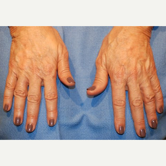 65-74 year old woman treated with Radiesse after 3624146