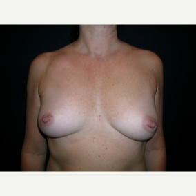 44 year old woman treated with Breast Augmentation before 3840058